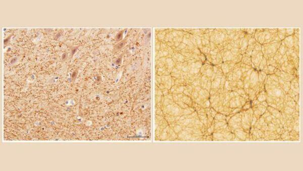 Mặt cắt của tiểu não với độ phóng đại 40x thu được bằng kính hiển vi điện tử (trái) và một phần của mô hình vũ trụ (phải) - Sputnik Việt Nam