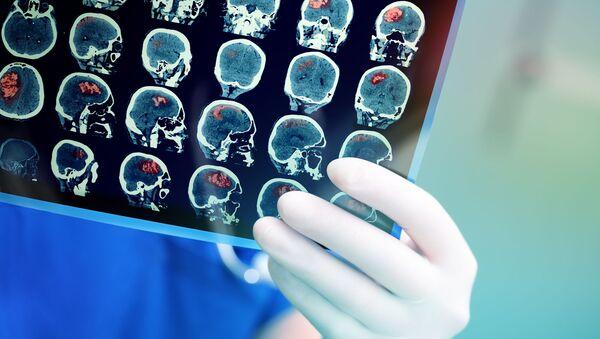 Chụp MRI não của bệnh nhân - Sputnik Việt Nam