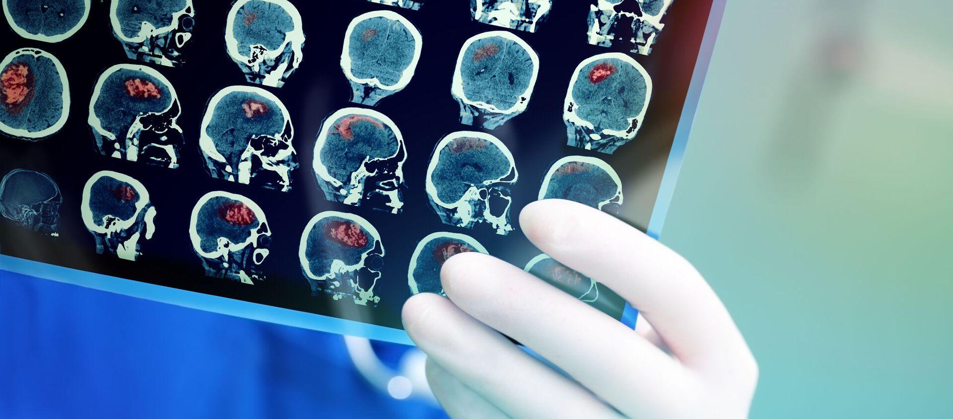 Chụp MRI não của bệnh nhân - Sputnik Việt Nam, 1920, 29.06.2021