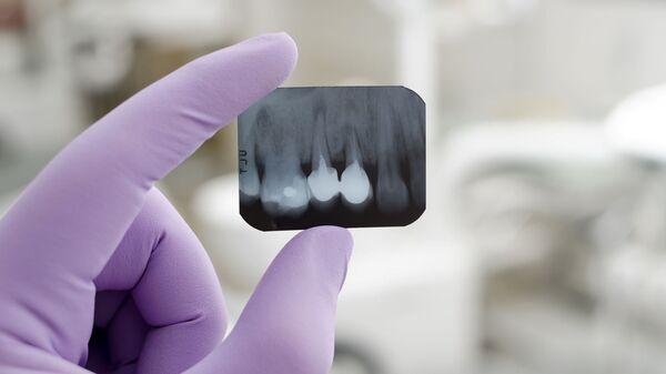 Врач с рентгеном зуба - Sputnik Việt Nam