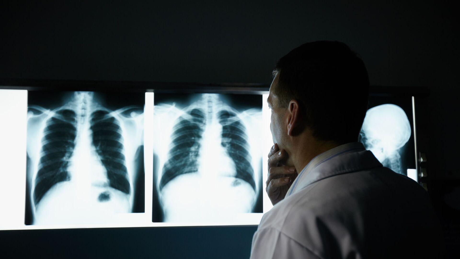Bác sĩ kiểm tra phim chụp X-quang phổi - Sputnik Việt Nam, 1920, 13.10.2021