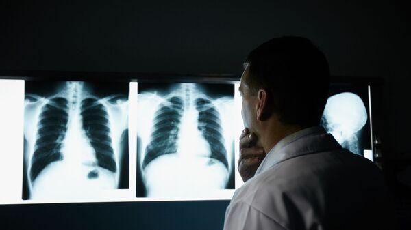 Врач рассматривает рентгеновские снимки легких - Sputnik Việt Nam