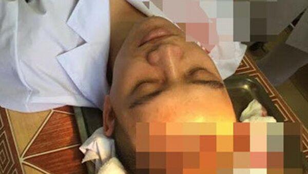 Xác minh đối tượng hành hung bác sĩ ở Thạch Thất, Hà Nội - Sputnik Việt Nam