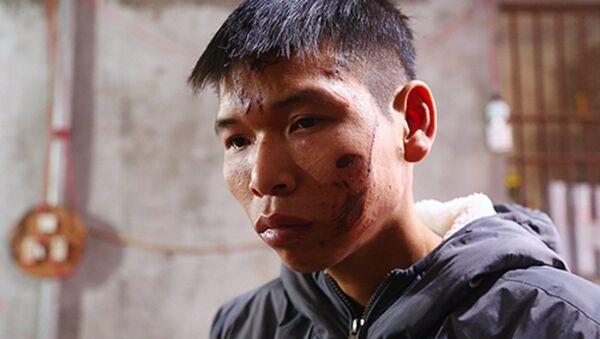 Anh Đặng Đình Tiến vẫn chưa lành vết thương sau vụ nổ sáng 3/1. - Sputnik Việt Nam
