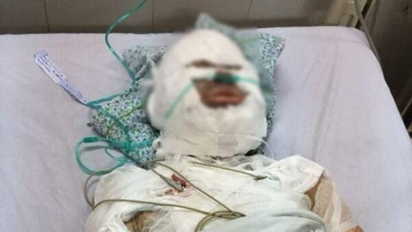 Chị H hiện đang được cấp cứu tại Bệnh viện Xanh Pôn. - Sputnik Việt Nam
