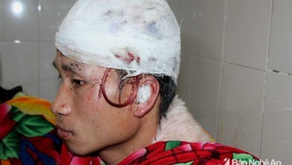 Gấu tấn công khiến đầu anh Sầm Văn Hân rách một mảng lớn. - Sputnik Việt Nam