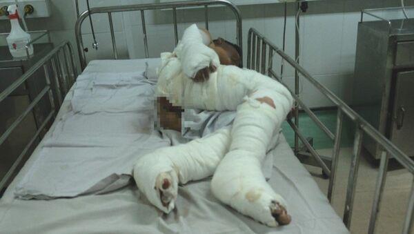 Bé Khôi bị bỏng nặng hai chân và cháy nám mặt. - Sputnik Việt Nam