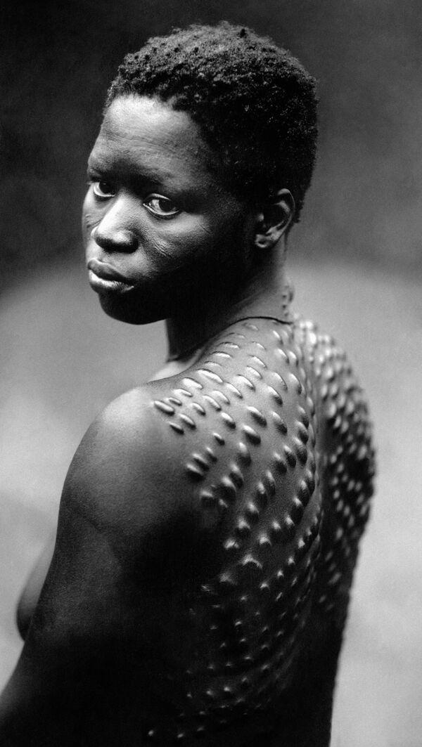 Các bộ lạc châu Phi thấy biểu hiện của sắc đẹp là những cô gái có làn da đầy sẹo. - Sputnik Việt Nam