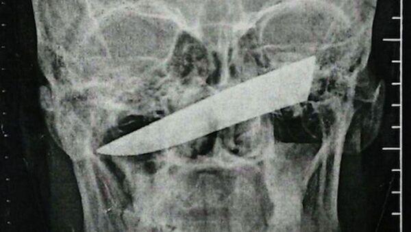 Một cư dân Nam Phi đã trải qua bốn ngày với một lưỡi dao trong đầu - Sputnik Việt Nam