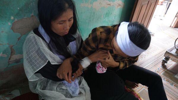 Vết thương do nghi phạm Tiến gây ra cho chị Nguyệt. - Sputnik Việt Nam