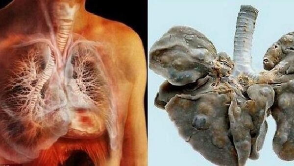 Lá phổi bị nhiễm sán - Sputnik Việt Nam
