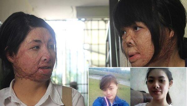 2 cô gái bị chồng đốt tựa vào nhau tìm lại hình hài - Sputnik Việt Nam