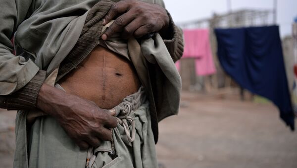 Người đàn ông Pakistan với vết mổ lấy thận đem bán - Sputnik Việt Nam