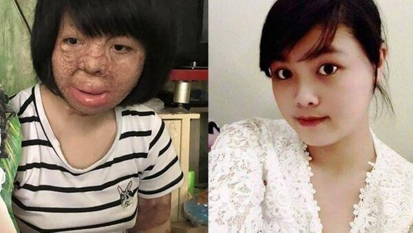Dung sau khi bị chồng tẩm xăng đốt và gương mặt xinh đẹp trước kia - Sputnik Việt Nam