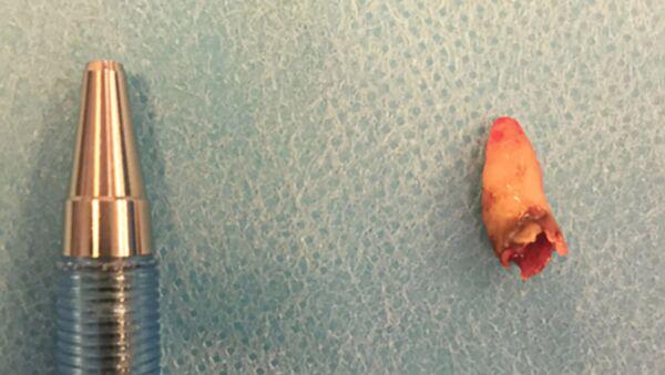 Một người Đan Mạch mọc răng trong mũi - Sputnik Việt Nam
