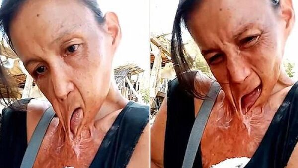 Người phụ nữ miệng dính trên ngực suốt 15 năm - Sputnik Việt Nam