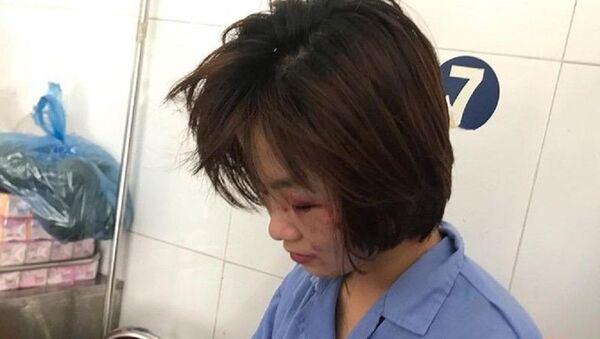 Chị H. đang được điều trị tại bệnh viện. - Sputnik Việt Nam