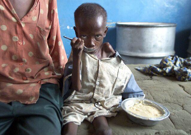 Em bé suy dinh dưỡng trong bệnh viện Cabinda, Congo