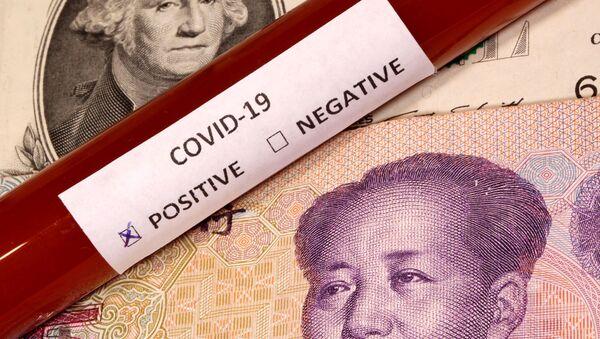 Xét nghiệm coronavirus dương tính trên đô la và nhân dân tệ - Sputnik Việt Nam