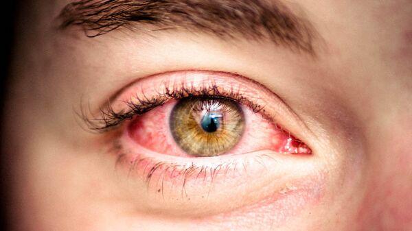 Cô gái mắt đỏ - Sputnik Việt Nam